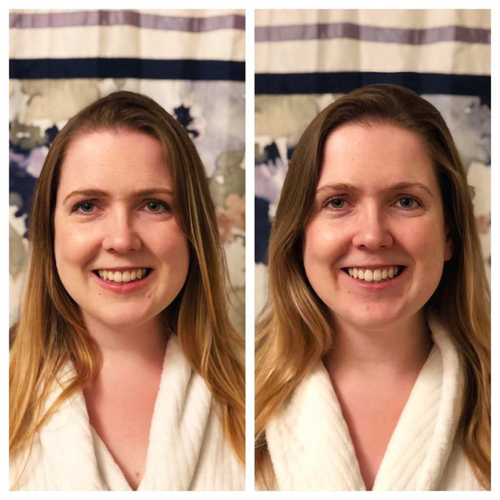 Before and after at home teeth whitening results - Her Heartland Soul